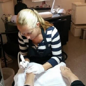 Kalknagel behandeling door Provoet Pedicure le Pair