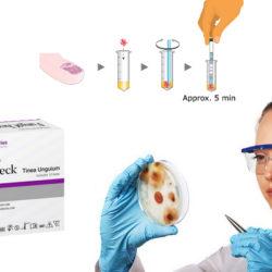 FungiCheck - schimmelnagel test, kalknageltest | LePair webshop